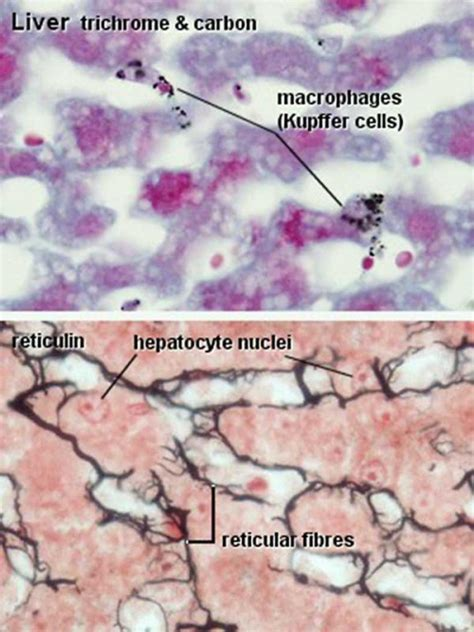 Gastrointestinal Tract - Liver Histology - Embryology