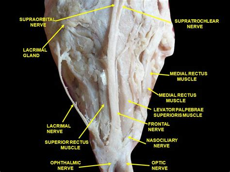 Ophthalmic Nerve