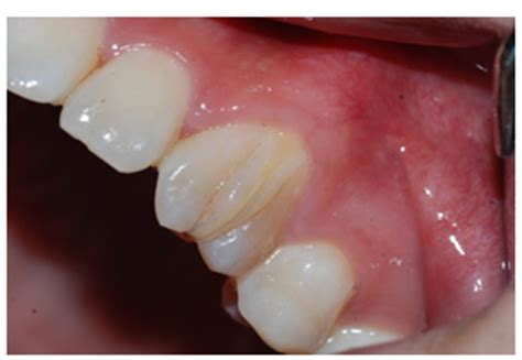 A Variant Form of Dens Invaginatus in Permanent Maxillary